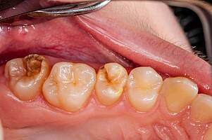 Are antibiotics the cause of dental chalk?     healthy city of berlin