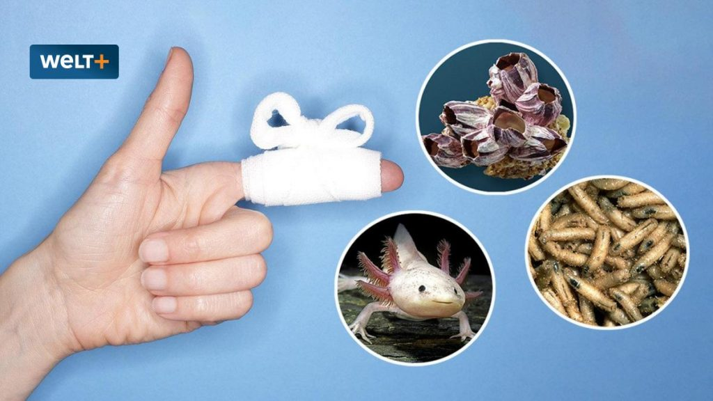 Chronic wounds: Can animal adhesives replace bandages and sutures?